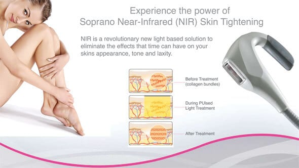soprano ice skin tightening technology