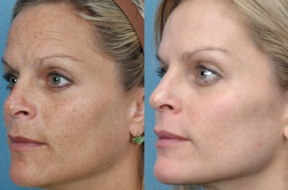 IPL Skin Rejuvenation skin treatment, before and after image